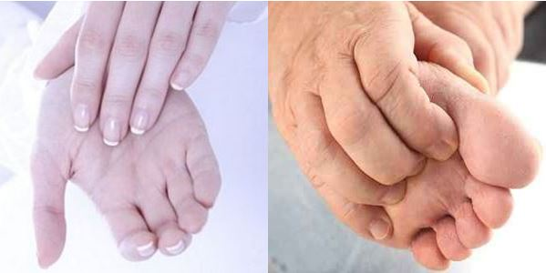 picazon en los pies y manos embarazo